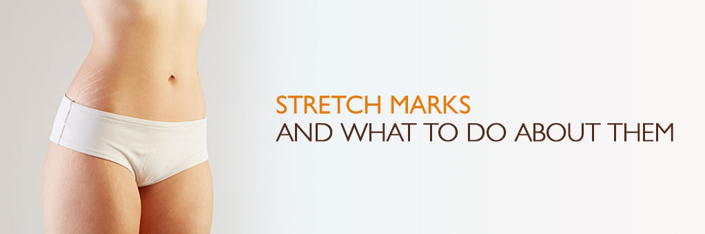 Stretch Marks and what to do about them.