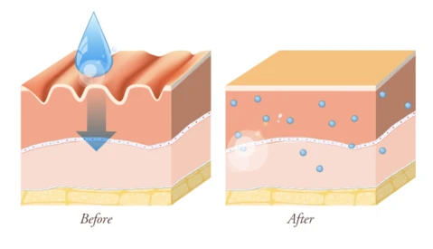 graphic showing the before and after of using hyaluronic acid