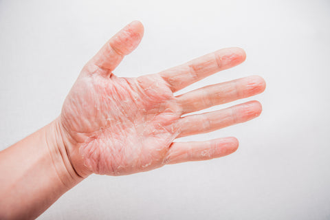 Eczema on palm of hands