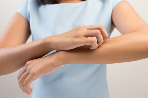 woman scratching itchy sensitive skin