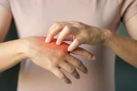 Scratching dry hands