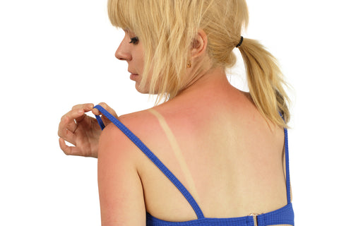 woman looking for sunburn relief