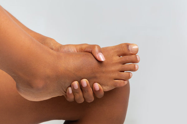 How to Cure Dry, Cracked Heels