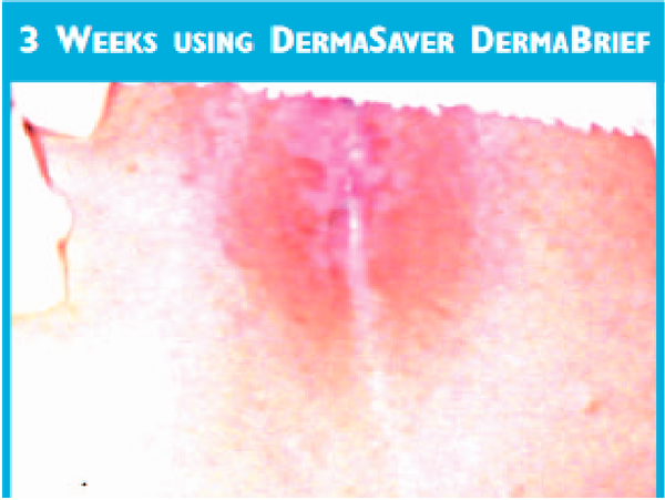 DermaBrief™ Pull Up - DB1300