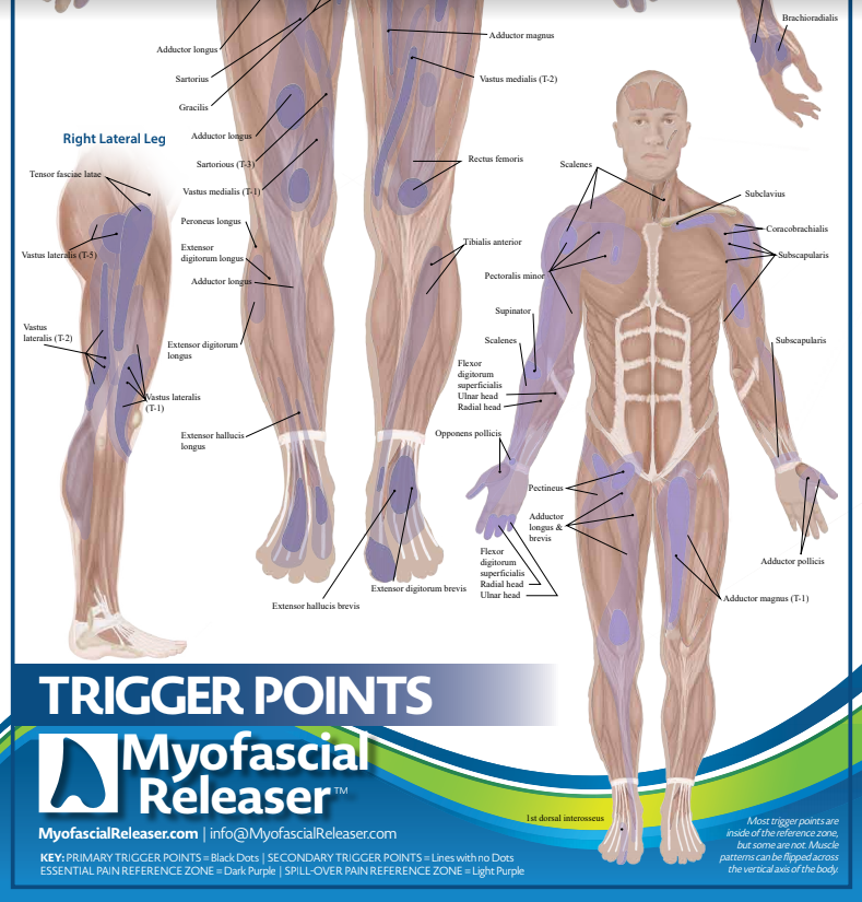 Trigger Point Anatomy Map (Poster sized)