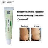1PC zudaifu Sulfur Soap add 1PC zudaifu Psoriasis Cream Body Massage Patches Wholesale