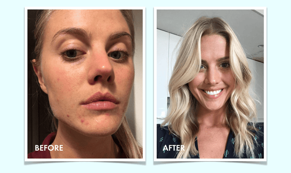 The answer to acne: An interview with a Vitaclean convert