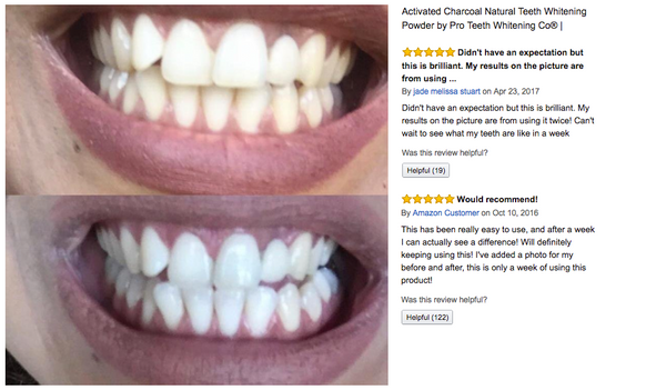 activated charcoal for teeth whitening pro teeth whitening co. Black Bedroom Furniture Sets. Home Design Ideas