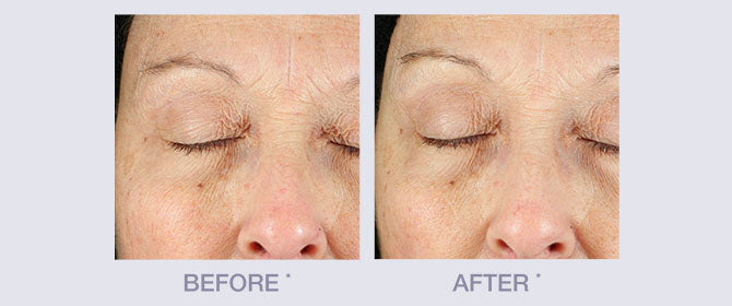 Before and After Anti-Wrinkle Line by Derma E