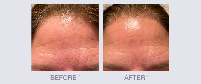 Before and After of Firm and Lift Line by Derma E