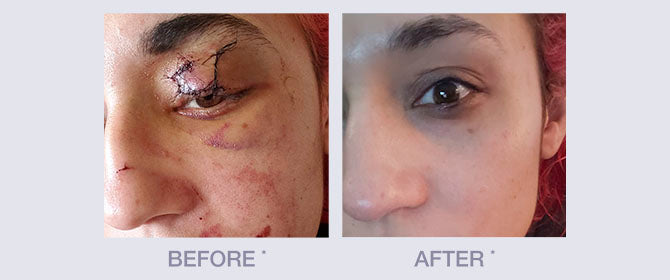 Before and After using Derma E Scar Gel