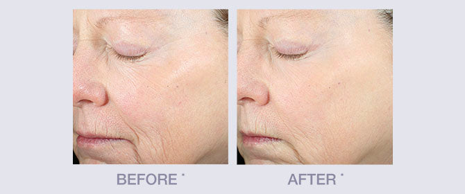 Before and After results for Skin Restore line by Derma E