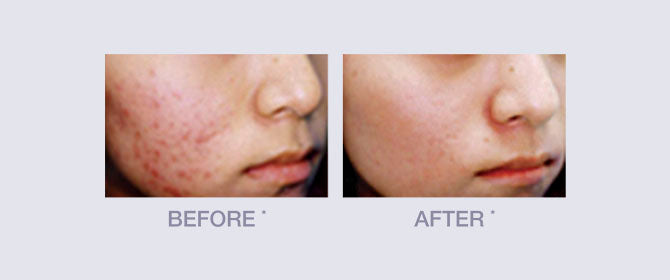 Before and After of Vitamin C Derma E Line