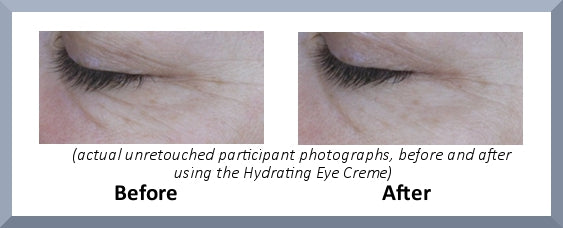 Hydrating Eye creme before after trial