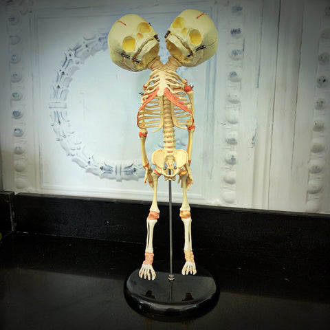 Two-Headed Skeleton Anatomical Model