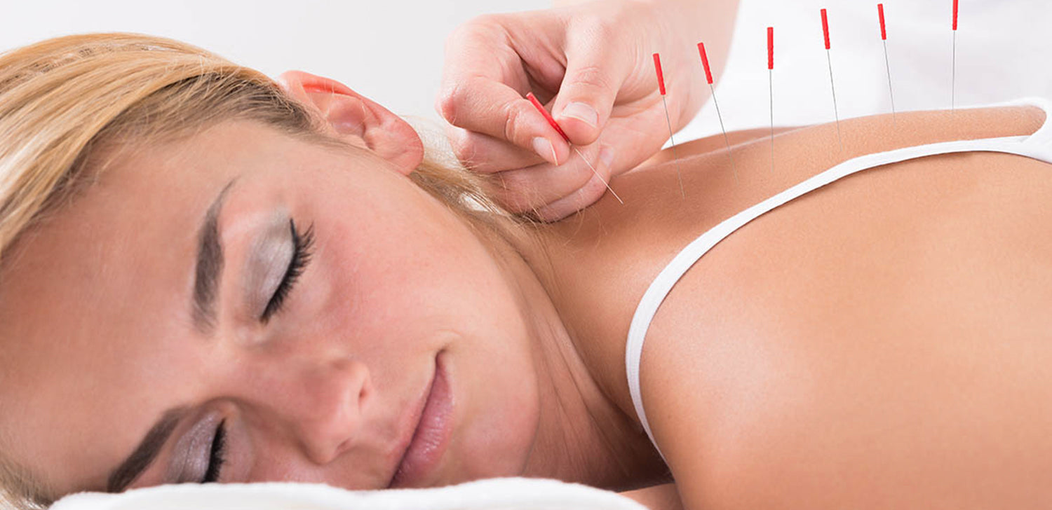 Acupuncture Effective for Pain Relief
