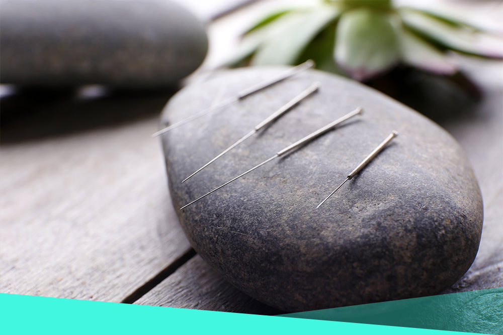 Can Acupuncture Help Relieve Arthritis Pain?
