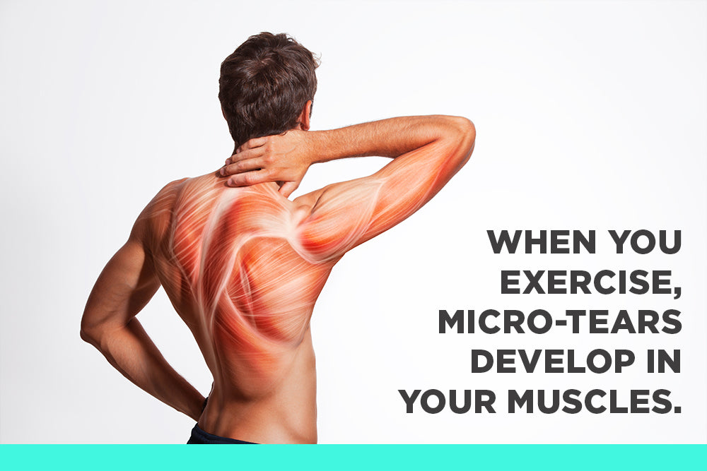 Sore Muscle Pain Causes Treatments And Prevention