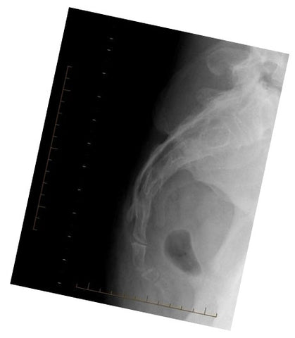 x-ray Coccyx Normal
