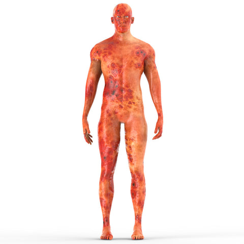 Inflammation man