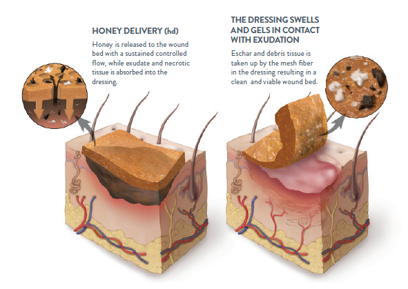 wound healing capacity using honey Heel ulcer after 6 months of honey therapy honey as wound treatment in the medical literature honey has been used to treat wounds for millennia, 6 but the medical evidence supporting its use is limited while there are many case reports of honey's effectiveness, 7 controlled trials demonstrating effectiveness for treating burns and wounds are limited by poor quality and the use of.