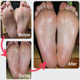 CENDRILLON - UREA Exfoliating Foot Mask for Diabetics