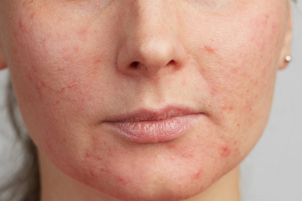 How to control Hormonal Acne