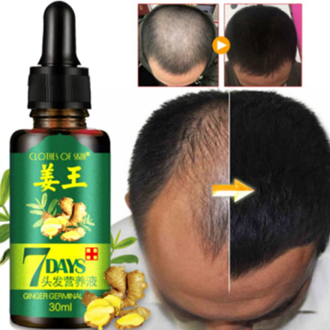7 Days Hair Regrowth Serum