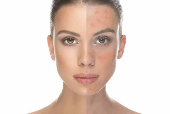 Common Cosmetics and Skin Inflammation