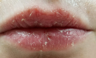 Lip Eczema Cured