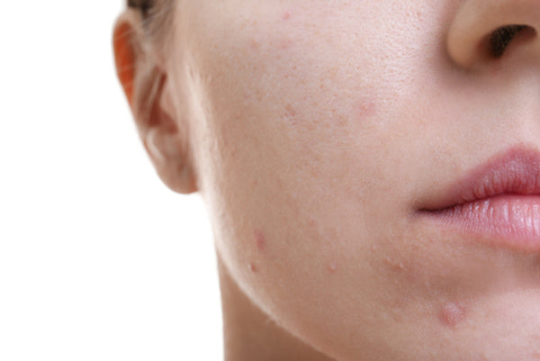 A Case of Hormone Triggered Acne