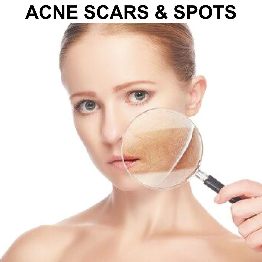 Glycolic Peel System for Acne Scarred Skin & Skin ...