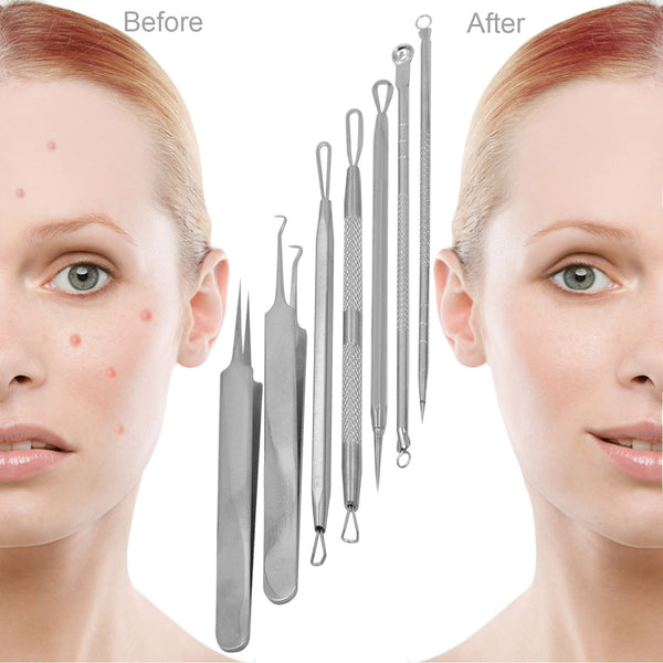 Becoyou 7Pcs Portable Facial Nursing Set Blackhead Whitehead Acne Pimples Remover Kit