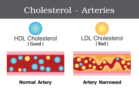Good and Bad Cholesterol (LDL and HDL)