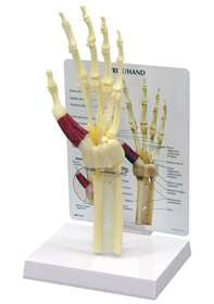 GPI Anatomicals 70576 Wrist/Hand Carpal Tunnel Syndrome Model - Artxmedical