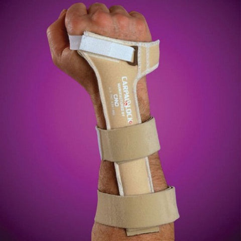 Carpal Lock Wrist Splint