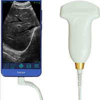 USB Ultrasound probe, Black & White Convex for PC and Tablet devices