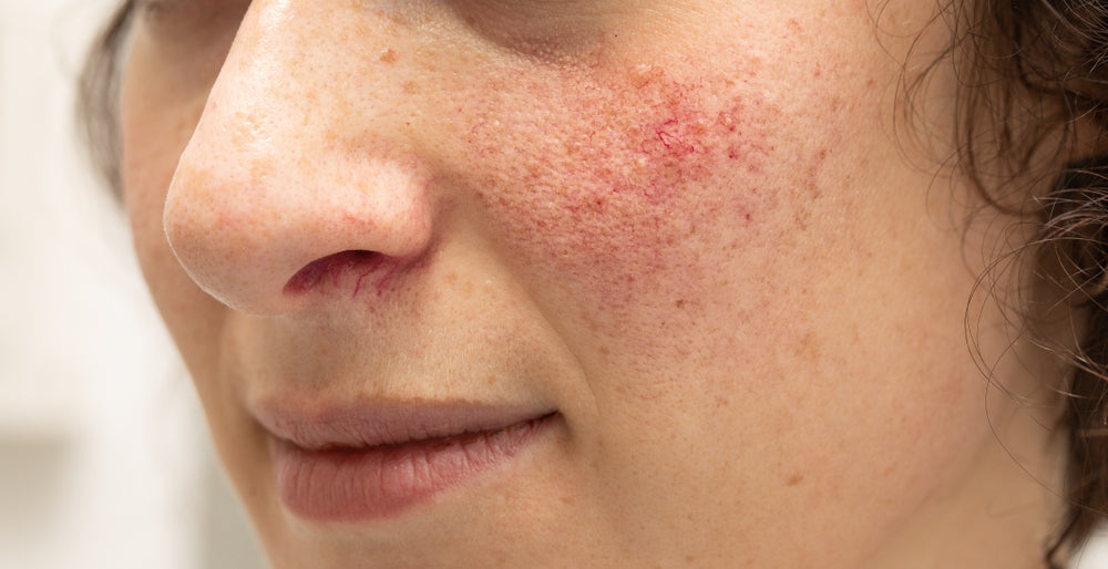 Your Rosacea questions answered by Honey Bee Beautiful