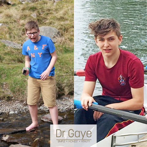 Ralph Burrows before and after - Even Teenagers Think About Health - Dr Gaye