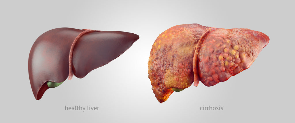 Healthy Liver and Liver Cirrhosis