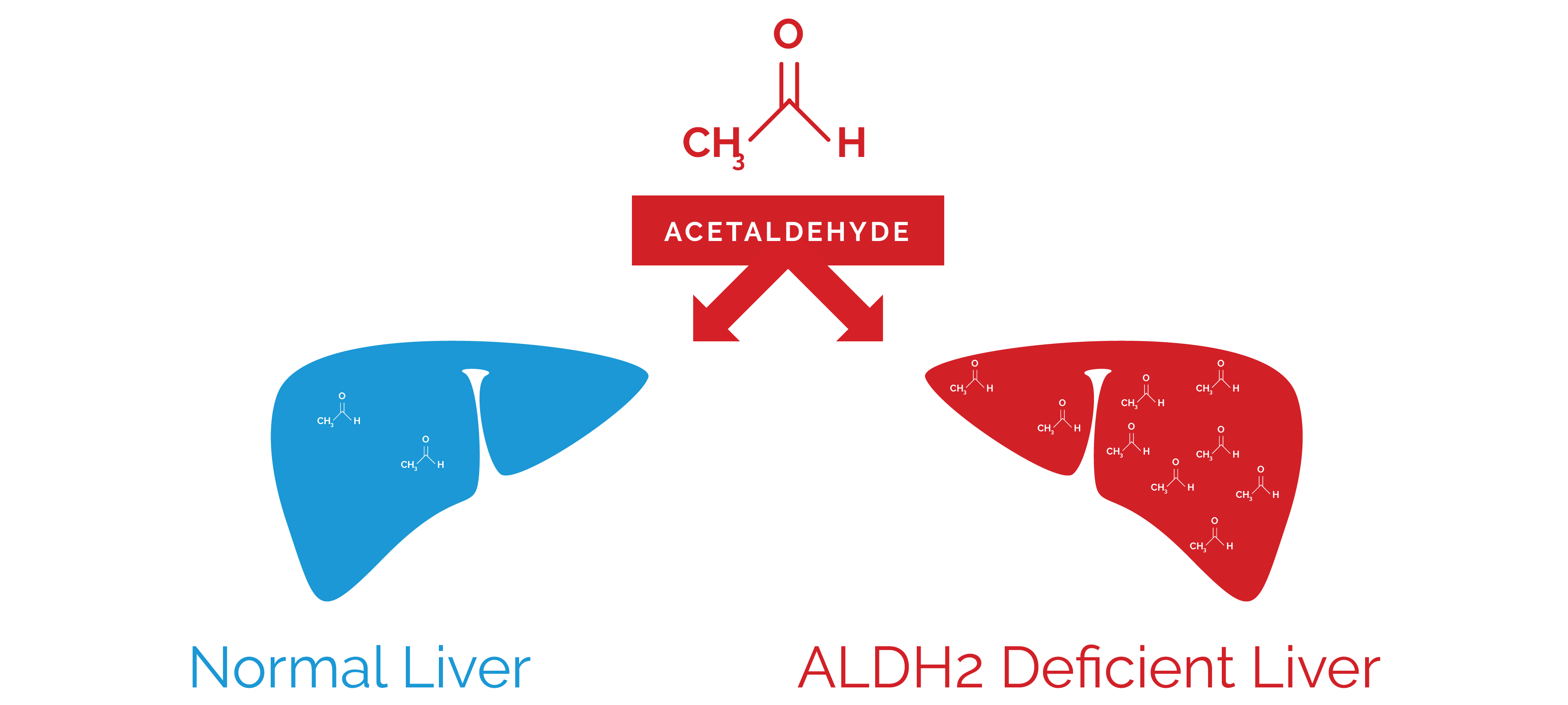 Aldh2 deficiency liver graphic 8529c91d 8561 4c87 ba65 c71be8a4b1dd