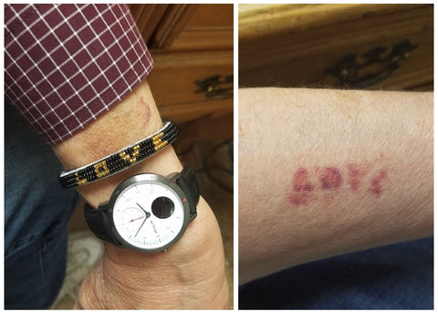 Tim wearing Love Is Project Bracelet and LOVE-shaped bruise