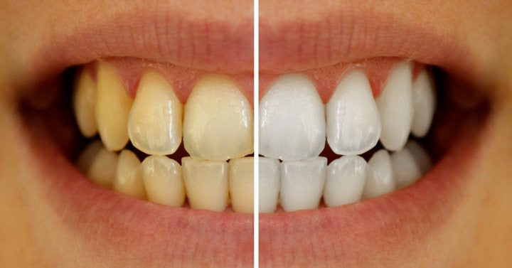 Benefits of using the best at home teeth whitening kits