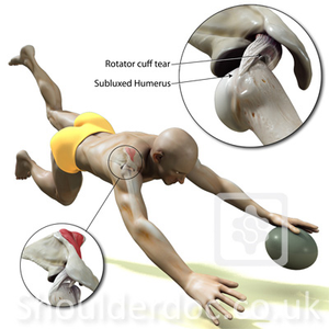The rugby shoulder