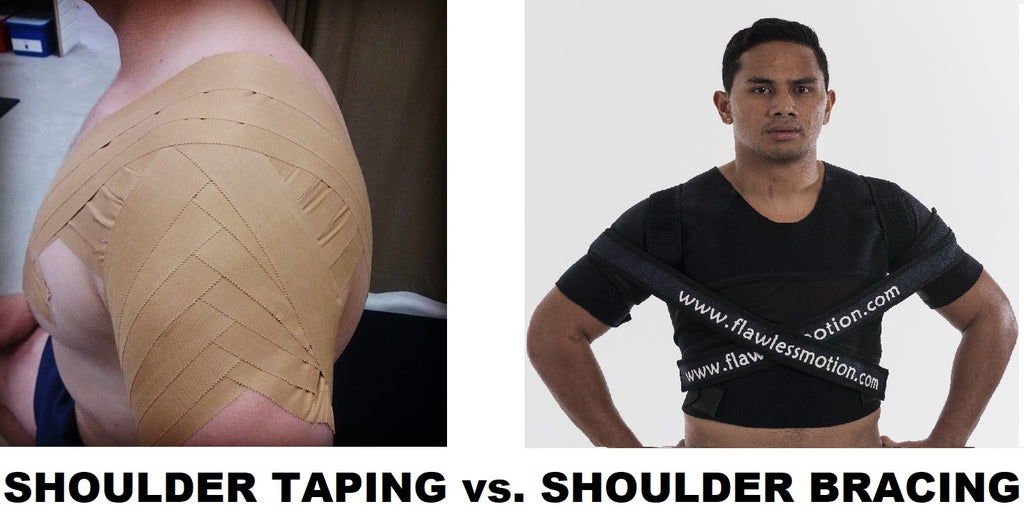 Shoulder taping vs. bracing