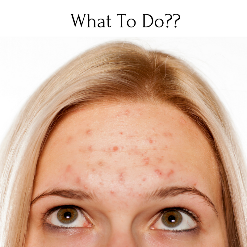 What to do for Acne