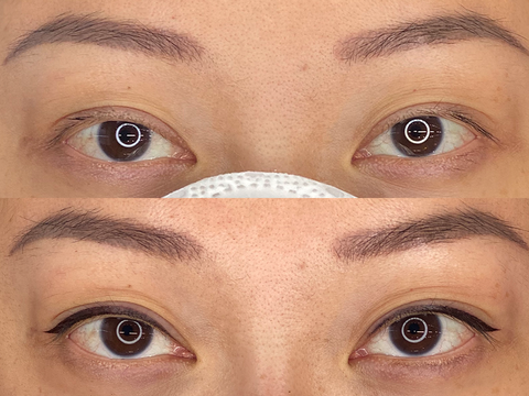 Mini Eyeliner Procedure Before and After results