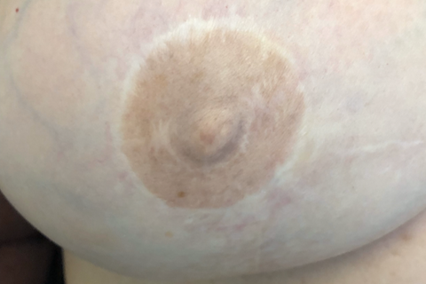 Areola Tattoo Picture Before by Jill Hoyer