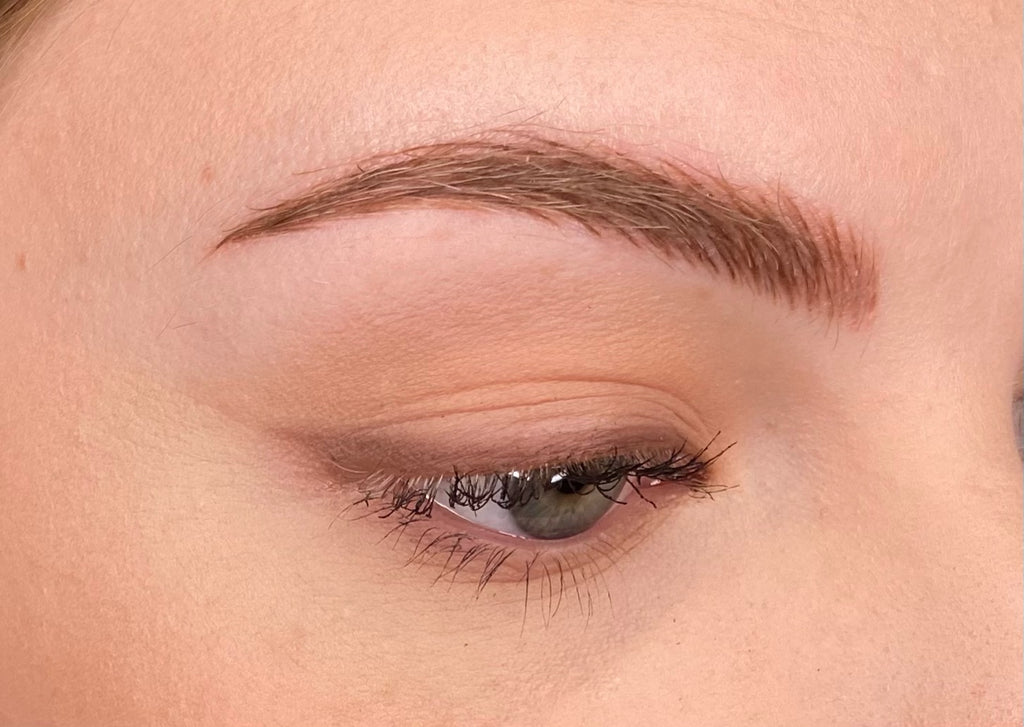 Megan Day 5 Post Microblading and Microshading Procedure