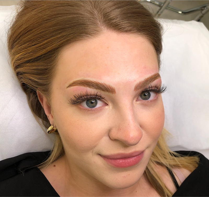Megan Immediately After Microblading and Microshading Procedure